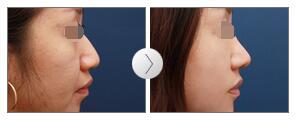 假体隆鼻整形案例