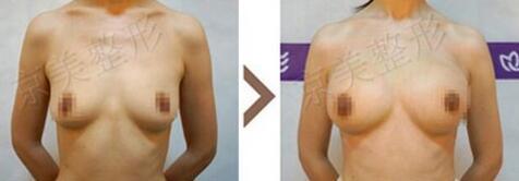 刘成胜为演员打造自体脂肪隆胸,采用的是AD动感隆胸手术