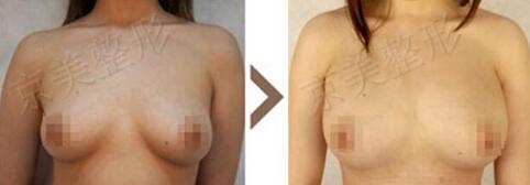 刘成胜为模特丰胸,采用的是自体脂肪隆胸技术,瘦身丰胸两不误。