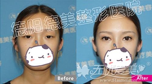 德阳德美韩式双眼皮手术案例