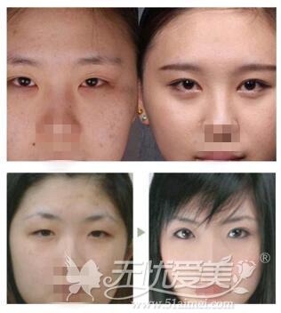 淄博阳光整形双眼皮手术案例