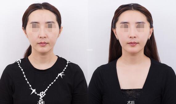 在大连天俪医美做面部提升术前后对比整形案例
