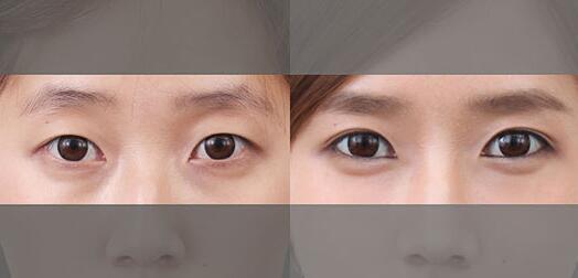 双眼皮真人模特展示 倾听蜕变故事