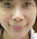 在武汉西婵康美做了激光去眼袋让我减龄5岁