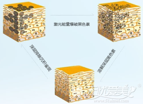 福州曙光激光祛斑原理