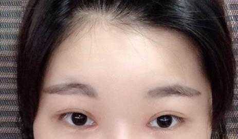 周一雄双眼皮术后图