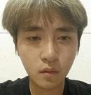 记录我在韩国原辰做颜面轮廓+眼、鼻修复术后2个月恢复过程