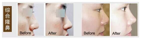 综合鼻整形案例对比图