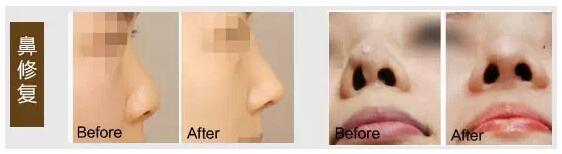 鼻修复整形案例对比图