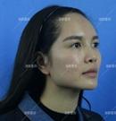 在福州海峡做了鼻综合手术后一个月我也成了侧颜女神