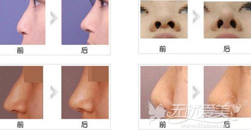 天津坤如玛丽达拉斯综合隆鼻案例