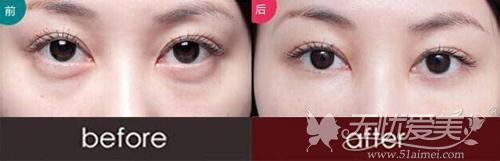 东莞南城知美整形祛眼袋案例