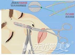 上海伊莱美发明鼻假体夹持器