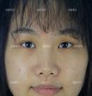 萌妹子在福州海峡割双眼皮(眼睛放大了2倍)变身男神收割机