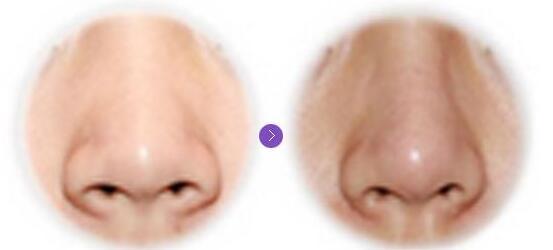 鼻翼缩小前后对比图