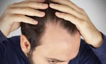 北京金凤凰医院专家建议大家在植发前一定要选择一家好的植好医院