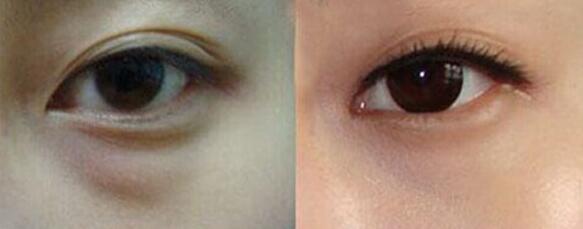 眼袋手术后眼球充血图_我做眼袋手术20天了 ,感觉效果不好,还能再做吗