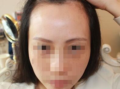 在华美做美人尖眉毛种植手术前