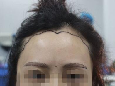 在华美做美人尖眉毛种植术前准备