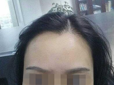 美人尖眉毛种植8个月后