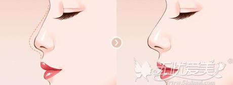 假体隆鼻可以轻松改变鼻型
