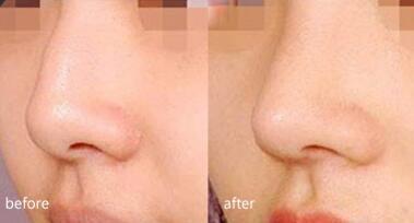 割双眼皮、鼻综合、脂肪填充是大庆邢立辉的热门整形项目