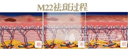 南宁梦想M22王者之心祛斑过程