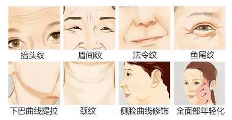 线雕提拉手术可改善多种皱纹