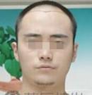 广州荔湾医院无痕植发让帅气舞蹈小王子强势回归舞台