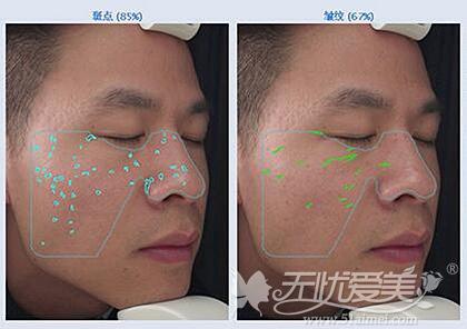 铂特丽VISIA皮肤检测