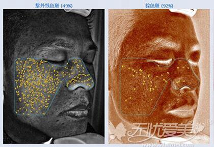 铂特丽激光祛斑前皮肤检测