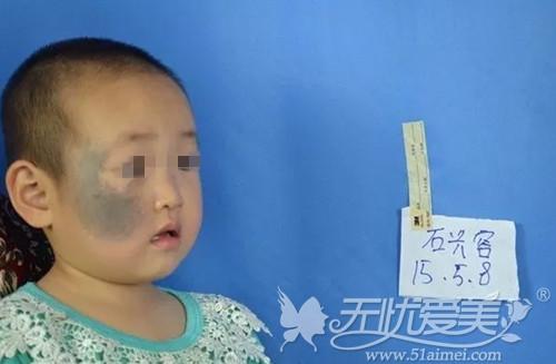 2岁太田痣女孩成为福州海峡爱心橡皮擦公益活动救助对象