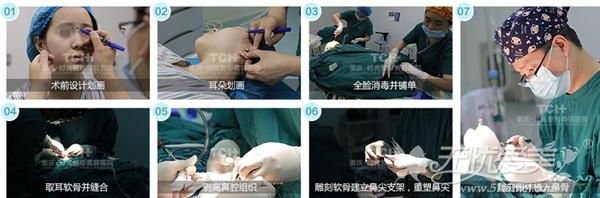 重庆时光DBM生态隆鼻全过程