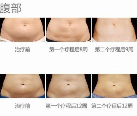 腹部减肥效果图