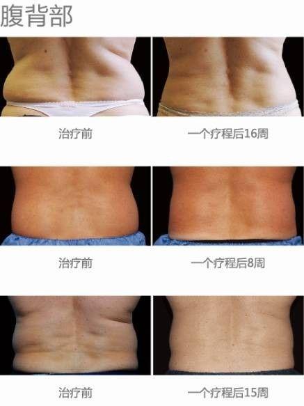 腰背部减肥后效果图