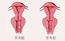 惠州伊丽莎白阴道紧缩术对比图