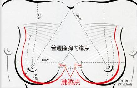 """福州海峡""""沸腾沟""""丰胸手术原理"""