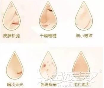 东莞知美注射可以改善的肌肤
