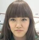 记录我在韩国id做无捆绑双鄂手术+下颌角手术后10个月恢复