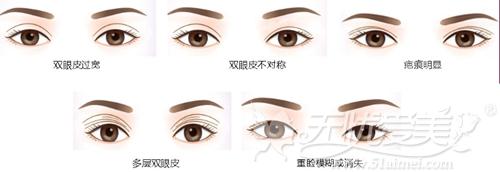 双眼皮手术常见的几种失败情况