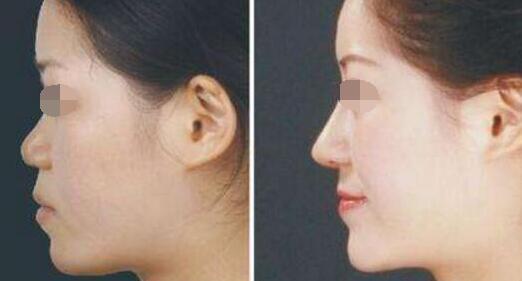 广州南方医院鲁峰隆鼻整形效果案例图
