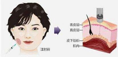 福州海峡注射瘦脸针原理