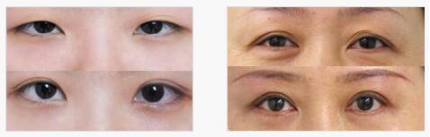 苏州美莱双眼皮手术案例图