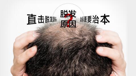 昆明丽都医生讲:偏方治疗脱发不靠谱,还是植发技术效果好!