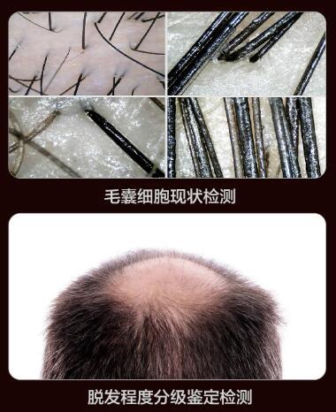 云南丽都整形专家讲:治疗脱发还是植发技术效果好!