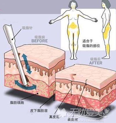 重庆华美多维立体吸脂术