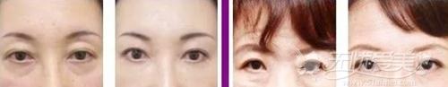 韩楚眼周年轻化治疗案例