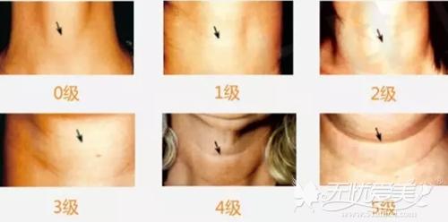 颈纹的分级标准详解