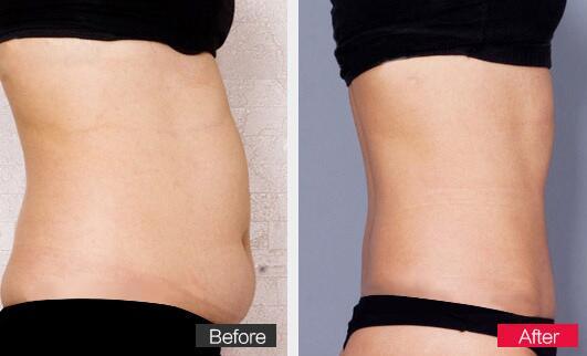 西安美立方3G逐层吸脂手术,让你轻松做个瘦美人!