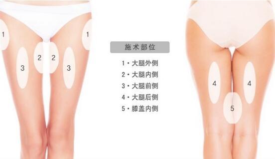 武汉美立方360°吸脂术可以吸取的脂肪